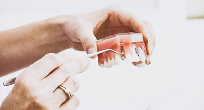 Zabiegi odbudowy kości w obrębie górnej i dolnej szczęki