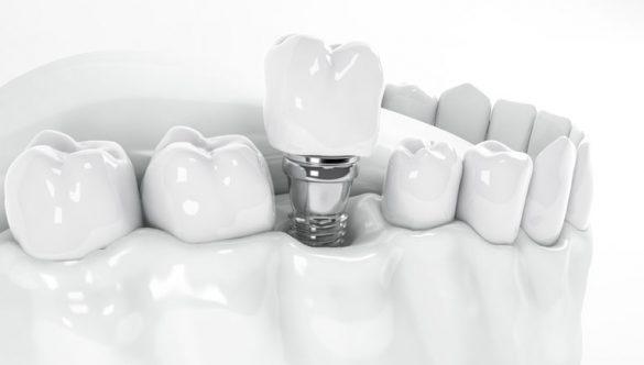 Wskazania i przeciwwskazania do zakładania implantów