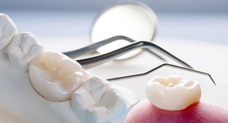 protetyka stomatologiczna kraków