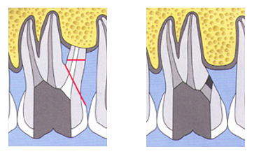 radektomia